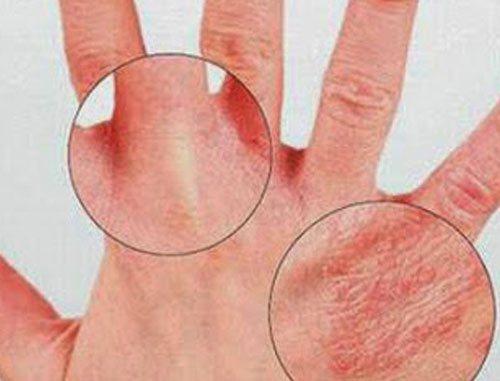Bệnh nấm á sừng và cách điều trị hiệu quả