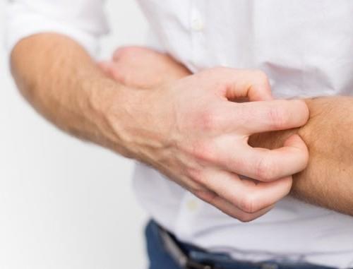 Bệnh nấm da và cách điều trị hiệu quả tại nhà