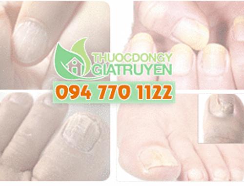 Bệnh nấm móng tay điều trị như thế nào