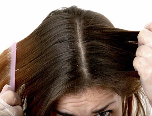 Thuốc trị nấm da đầu hiệu quả nào tốt nhất?
