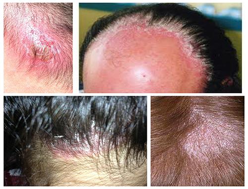 Thuốc trị nấm da đầu tốt nhất cho bạn điều trị tại nhà