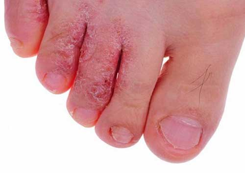 Thuốc trị nước ăn chân, chữa bệnh hà ăn chân, nấm kẻ chân