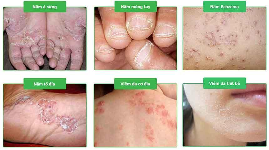 Hình ảnh bệnh nấm da trước điều trị